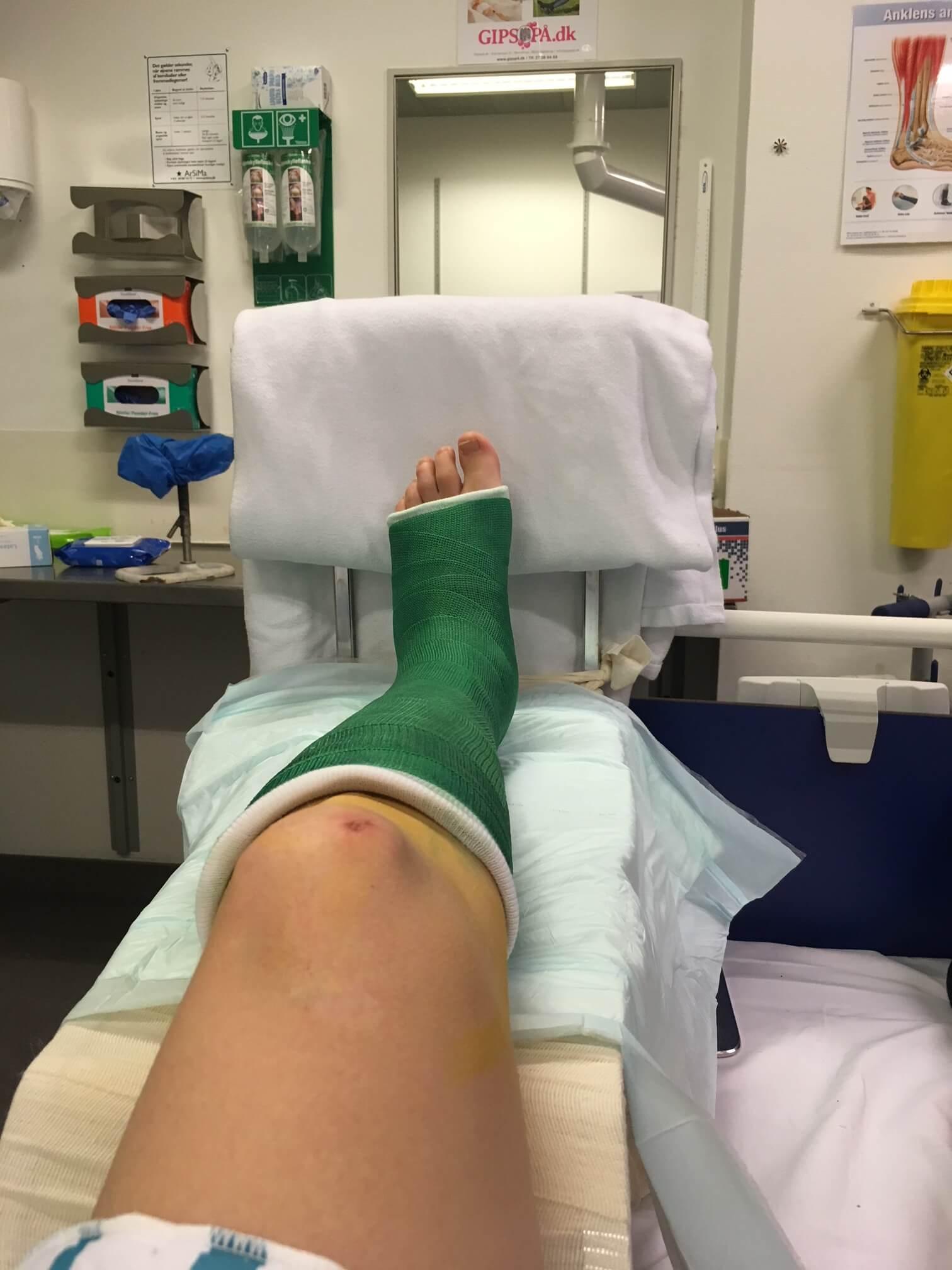 brækket fod