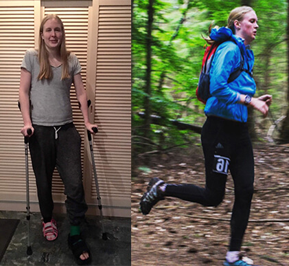 Camilla Bergmann_fra krykker til løbeskov_en skades værste fjende er håbet
