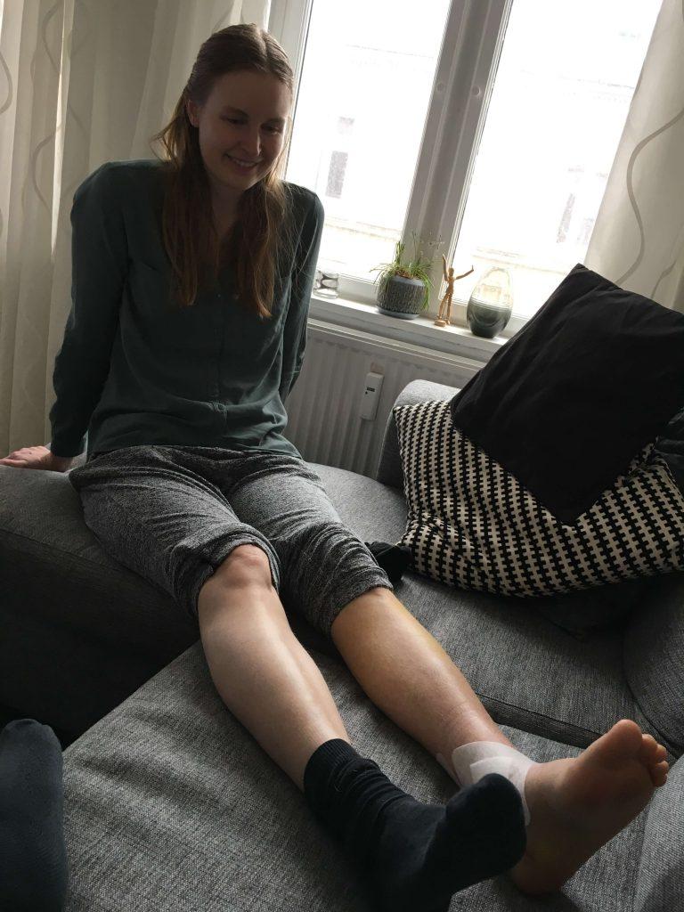 Camilla Bergmann_ankel_brækket-første bevægelighed