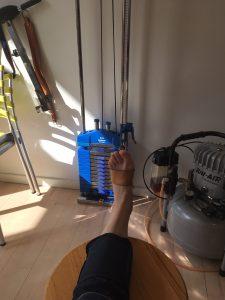 camilla-bergmann-brækket-ankel-genoptræning-ankelbrud